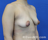 Breast Augmentation with Lift Beverly Hills - Breast Augmentation View Before 8 - 2