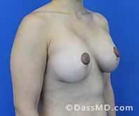 Breast Augmentation with Lift Beverly Hills - Breast Augmentation View After 8 - 2
