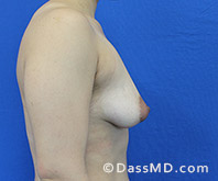 Breast Augmentation with Lift Beverly Hills - Breast Augmentation View Before 8 - 3