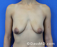 Breast Augmentation with Lift Beverly Hills - Breast Augmentation View Before 9 - 1