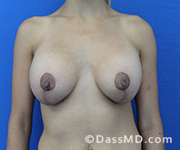 Breast Augmentation with Lift Beverly Hills - Breast Augmentation View After 9 - 1