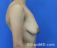 Breast Augmentation with Lift Beverly Hills - Breast Augmentation View Before 9 - 3