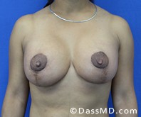 Breast Augmentation with Lift Beverly Hills - After Case 2 - 1