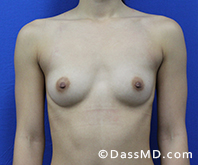 Breast Augmentation Results Beverly Hills - Breast Augmentation View Before 44 - 1