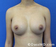 Breast Augmentation Results Beverly Hills - Breast Augmentation View After 46 - 1