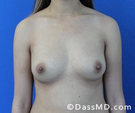 Breast Augmentation Results Beverly Hills - Breast Augmentation View Before 46 - 1