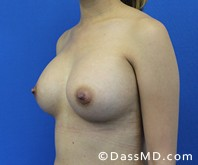 Breast Augmentation Results Beverly Hills - Breast Augmentation View After 46 - 2