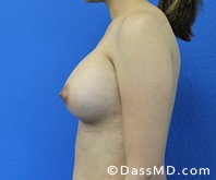 Breast Augmentation Results Beverly Hills - Breast Augmentation View After 46 - 3