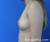 Breast Augmentation Results Beverly Hills - Breast Augmentation View Before 46 - 3