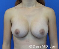 Breast Augmentation Results Beverly Hills - Breast Augmentation View After 48 - 1