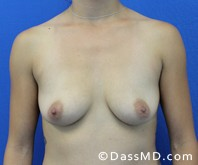 Breast Augmentation Results Beverly Hills - Breast Augmentation View Before 48 - 1