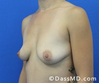 Breast Augmentation Results Beverly Hills - Breast Augmentation View Before 48 - 2