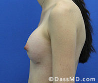 Breast Augmentation Results Beverly Hills - Breast Augmentation View After 42 - 3