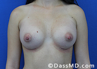Breast Augmentation Results Beverly Hills - Breast Augmentation View After 44 - 1