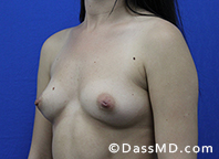 Breast Augmentation Results Beverly Hills - Breast Augmentation View Before 44 - 2
