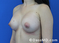 Breast Augmentation Results Beverly Hills - Breast Augmentation View After 44 - 2