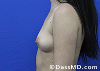 Breast Augmentation Results Beverly Hills - Breast Augmentation View Before 44 - 3