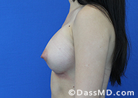 Breast Augmentation Results Beverly Hills - Breast Augmentation View After 44 - 3