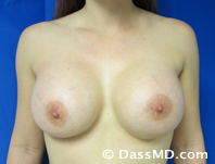 Breast Augmentation Results Beverly Hills - After Case 31-1