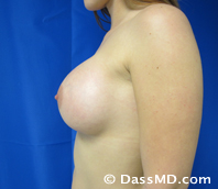 Breast Augmentation Results Beverly Hills - After Case 31-3