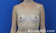 Breast Augmentation Results Beverly Hills - Breast Augmentation View Before 41 - 1