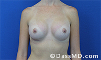 Breast Augmentation Results Beverly Hills - Breast Augmentation View After 41 - 1