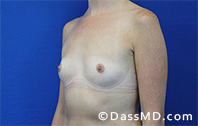 Breast Augmentation Results Beverly Hills - Breast Augmentation View Before 41 - 2