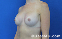 Breast Augmentation Results Beverly Hills - Breast Augmentation View After 41 - 2