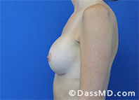 Breast Augmentation Results Beverly Hills - Breast Augmentation View After 41 - 3