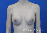Breast Augmentation Results Beverly Hills - After Case 36-1