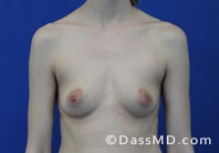 Breast Augmentation Results Beverly Hills - Before Case 36-1