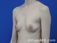Breast Augmentation Results Beverly Hills - Before Case 36-2
