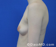 Breast Augmentation Results Beverly Hills - Before Case 36-3