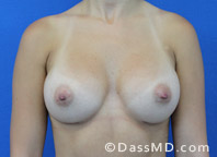Breast Augmentation Results Beverly Hills - After Case 37-1