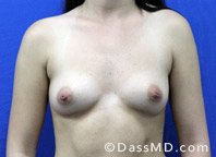 Breast Augmentation Results Beverly Hills - Before Case 37-1