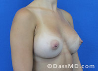 Breast Augmentation Results Beverly Hills - After Case 37-2