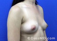 Breast Augmentation Results Beverly Hills - Before Case 37-2