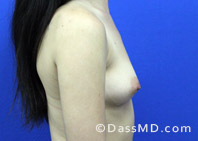 Breast Augmentation Results Beverly Hills - Before Case 37-3