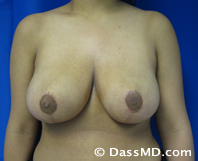 Breast Reduction Treatment Results Beverly Hills - After image set 1 - 1