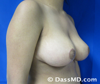 Breast Reduction Treatment Results Beverly Hills - After image set 1 - 2