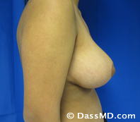 Breast Reduction Treatment Results Beverly Hills - After image set 1 - 3