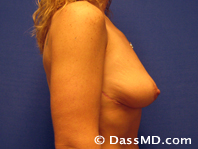 Breast Reduction Treatment Results Beverly Hills - After iamge set 2 - 1