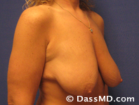Breast Reduction Treatment Results Beverly Hills - Before iamge set 2 - 2