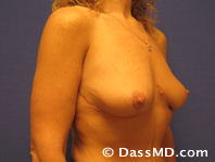 Breast Reduction Treatment Results Beverly Hills - After iamge set 2 - 2
