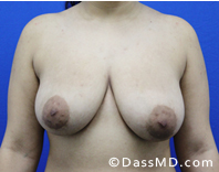 Breast Reduction Treatment Results Beverly Hills - Before image set 3 - 1
