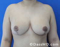 Breast Reduction Treatment Results Beverly Hills - After image set 3 - 1