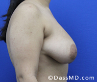 Breast Reduction Treatment Results Beverly Hills - Before image set 3 - 3