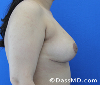Breast Reduction Treatment Results Beverly Hills - After image set 3 - 3