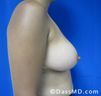 Breast Reduction Treatment Results Beverly Hills - After image set 4 - 1