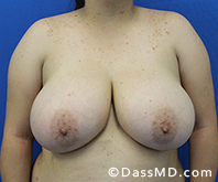 Breast Reduction Treatment Results Beverly Hills - Before image set 5 - 1